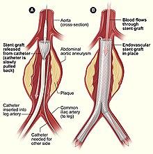 Urológia - sebészeti beavatkozások