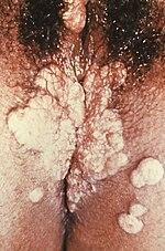 szifilisz és pénisz