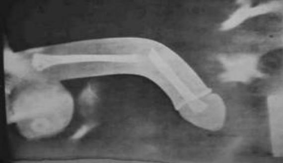 Duzzadt pénisz :: Dr. Koncz Pál - InforMed Orvosi és Életmód portál :: duzzadt pénisz