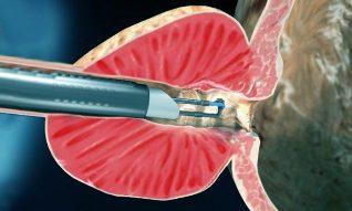 A műtét után prosztata adenoma gyakori vizelés