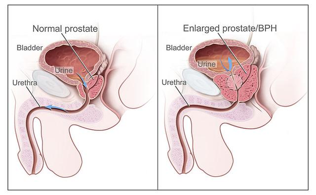 erekció és megnagyobbodás