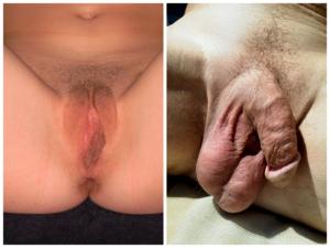 a pénisz intim része