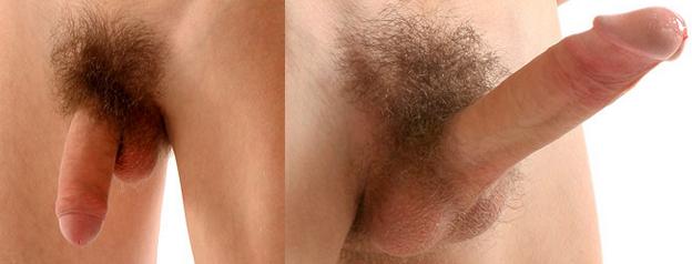 az erekció során a pénisz eltér