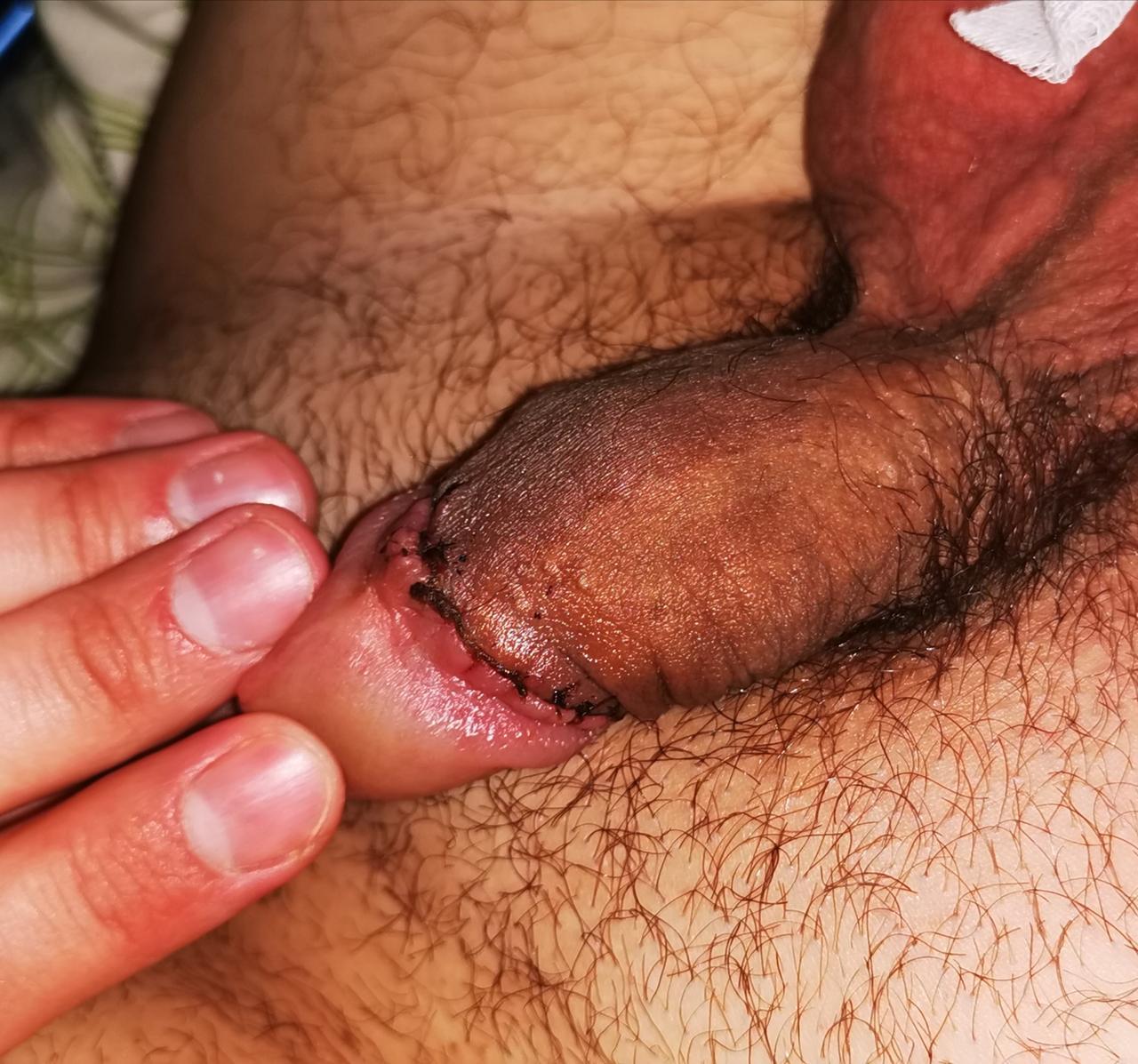 javítja az erekció minőségét
