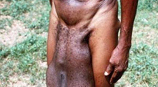 gyenge merevedési testtartás