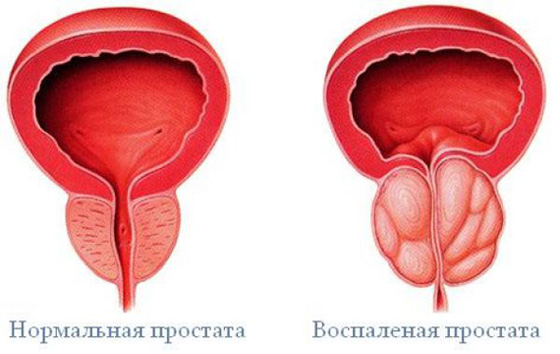 krónikus prosztatagyulladás-erekciós kezelés