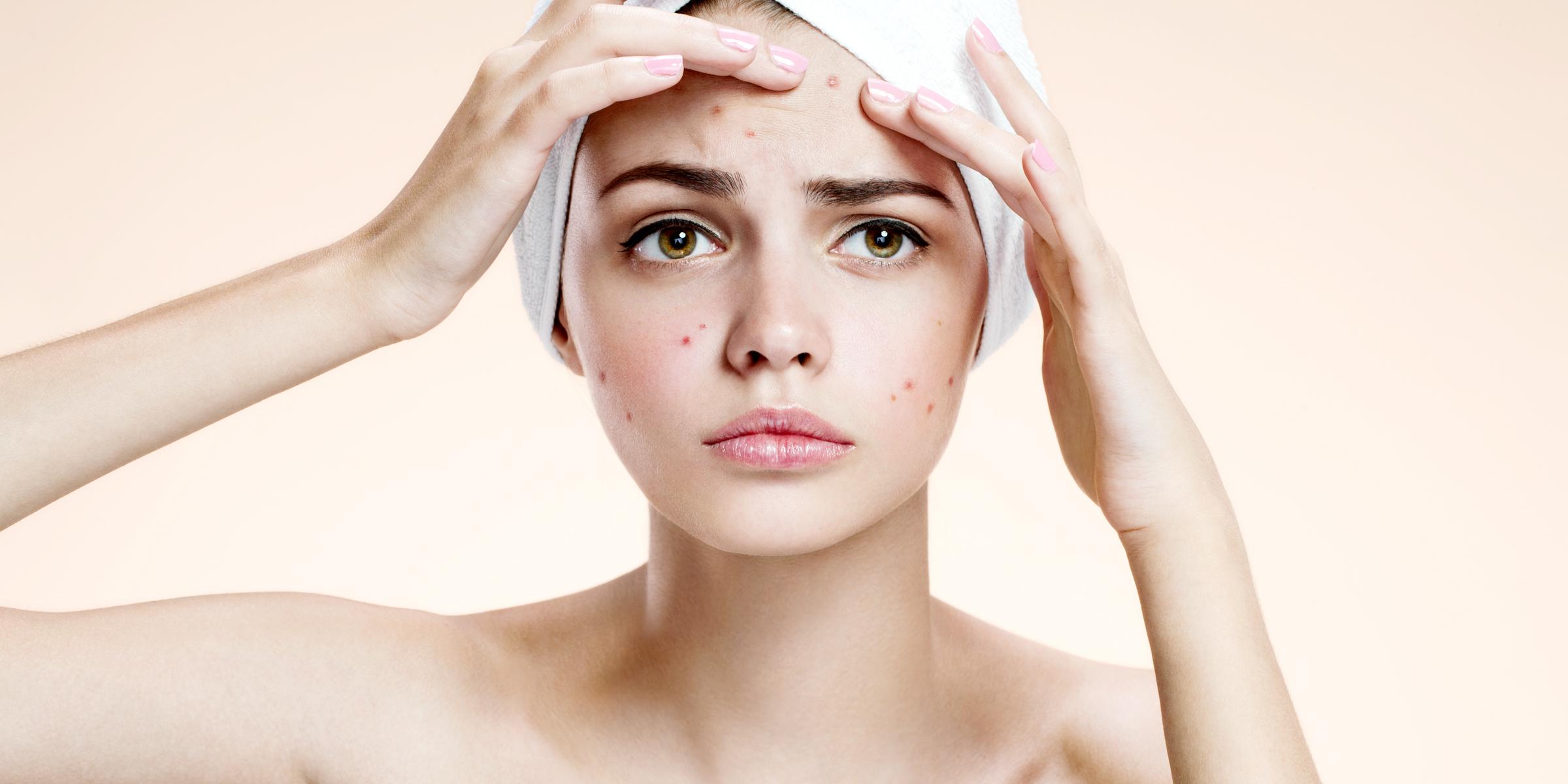 Akne - pattanásos bőr tünetei és kezelése - HáziPatika