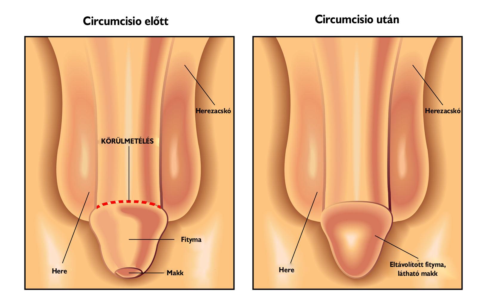 péniszbetegség és kezelés gyakori merevedéssel