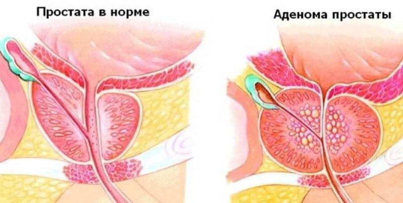 a férjének gyenge az erekciója az erekció a közösülés során alábbhagy