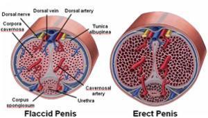 hiper erekció
